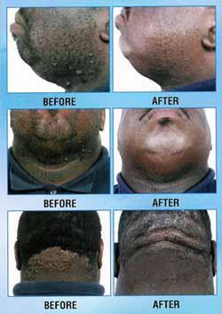 black men scalp before and after from laser hair removal
