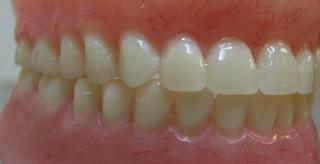 Global Dental Lab - Providence, RI