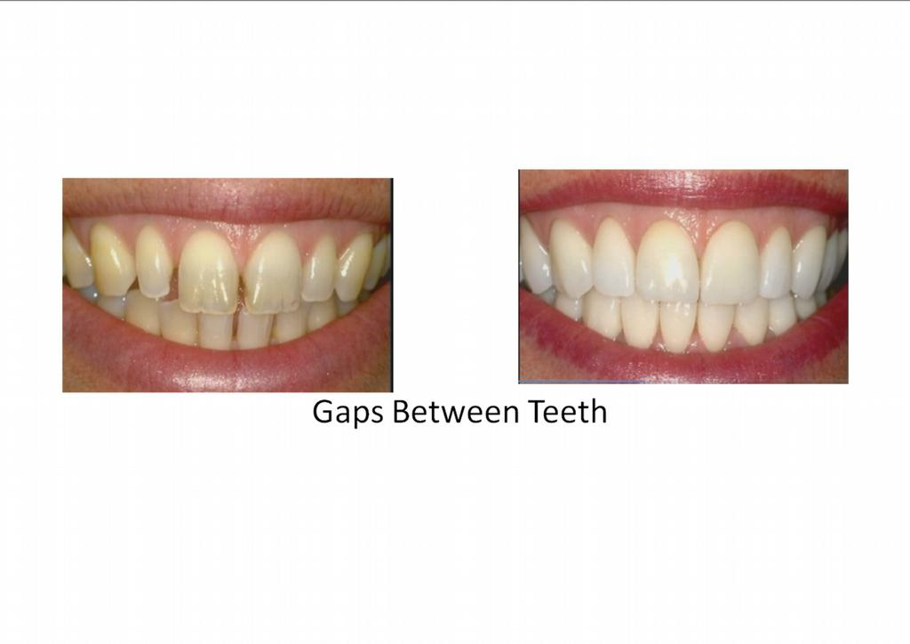 how to fix gap between teeth