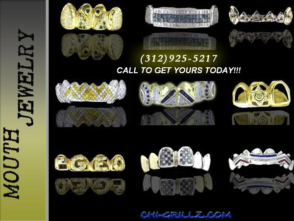 chigrillz mouth jewelry grillz by Chigrillz