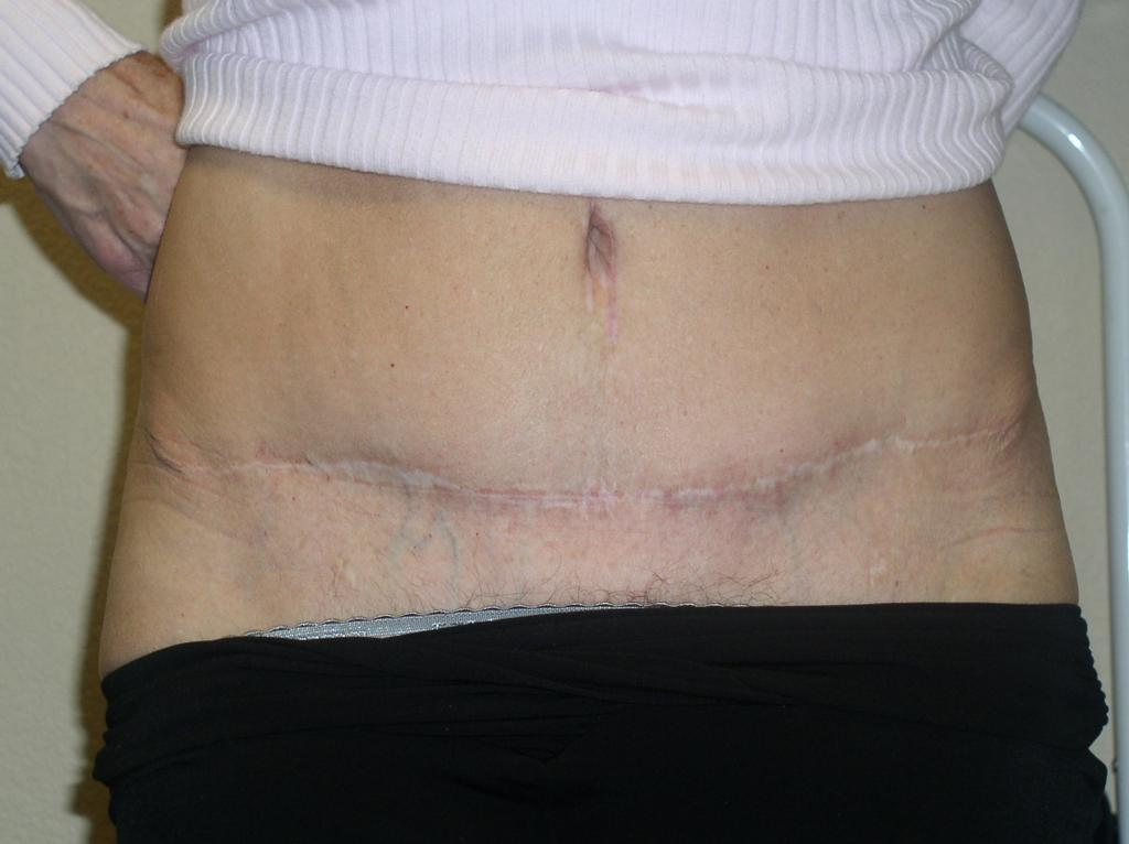 tummy tuck scars related keywords