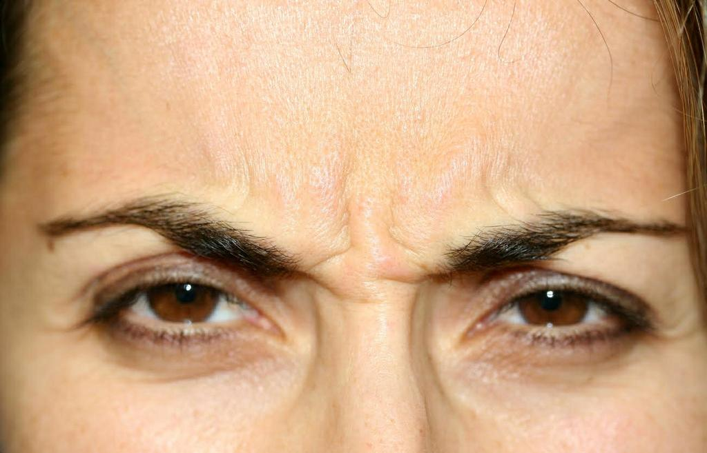 Before Botox by Carmel Valley Facial Plastic Surgery