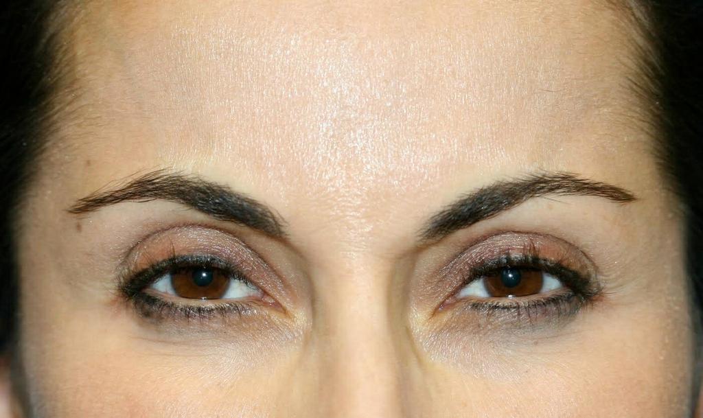 After Botox by Carmel Valley Facial Plastic Surgery