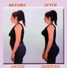 Before+and+after+body+shapers