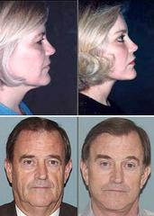 Plastikka Cosmetic Surger & Hair Restoration - Sturbridge, MA