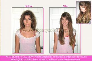 MD Beauty Solutions - Studio City, CA