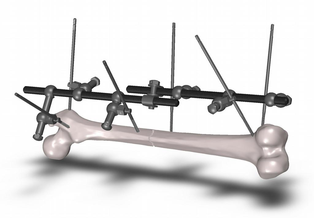 External Fixation System (Orthopedic Surgery) by Scott Industries