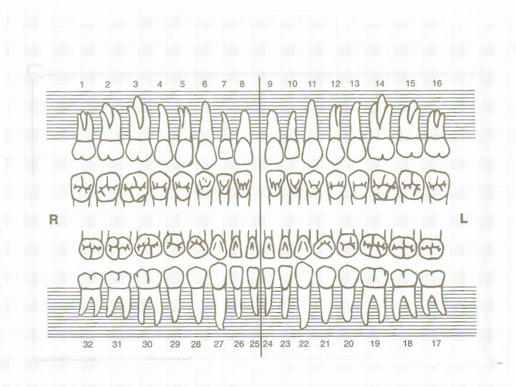 Tooth Chart from Winona Dental Clinic in Winona, MS 38967 Dentistry