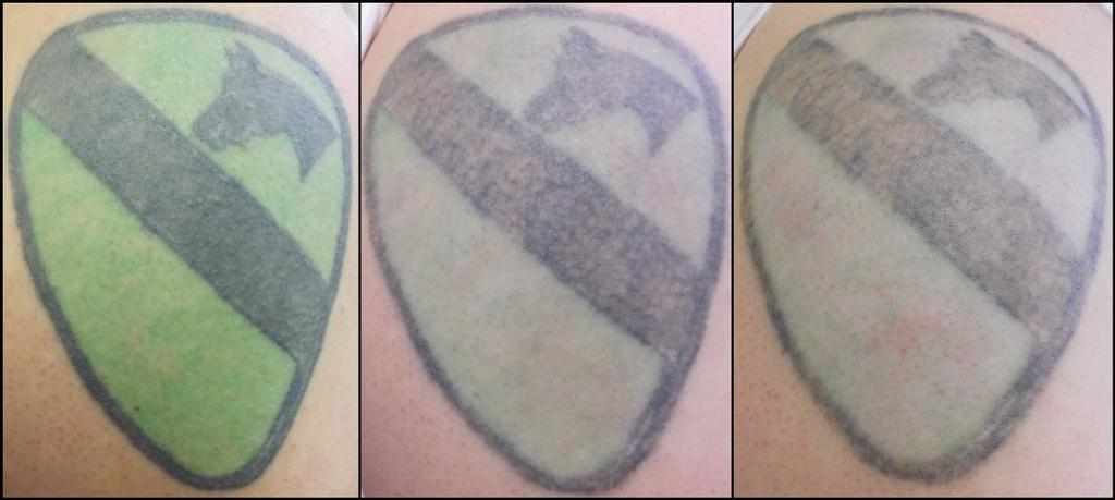 black and green tattoo from Vanish Laser Tattoo Removal and Skin ...