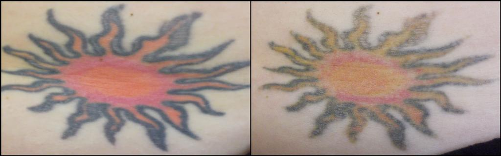 Vanish laser tattoo removal and skin aesthetics fort for Vanish ink laser tattoo removal