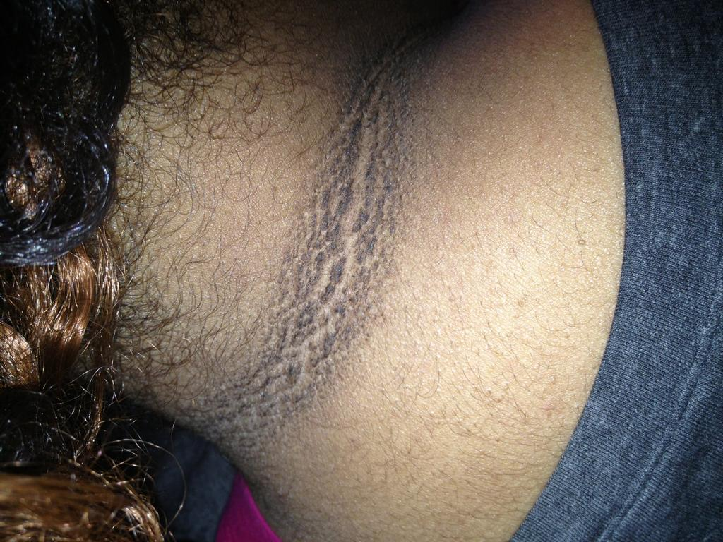 Acanthosis-nigricans-neck_full.jpeg