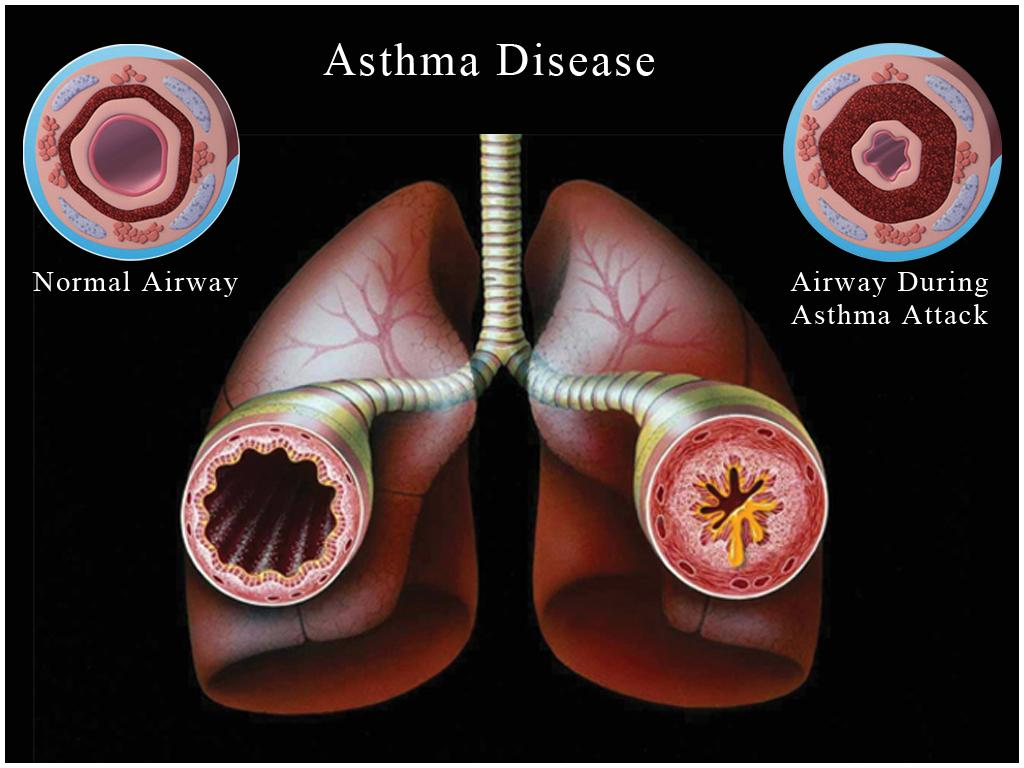 Asthma Powerpoint Template From Medical Powerpoint