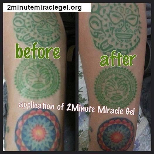 pictures for 2 minute miracle gel skincare in pembroke nc