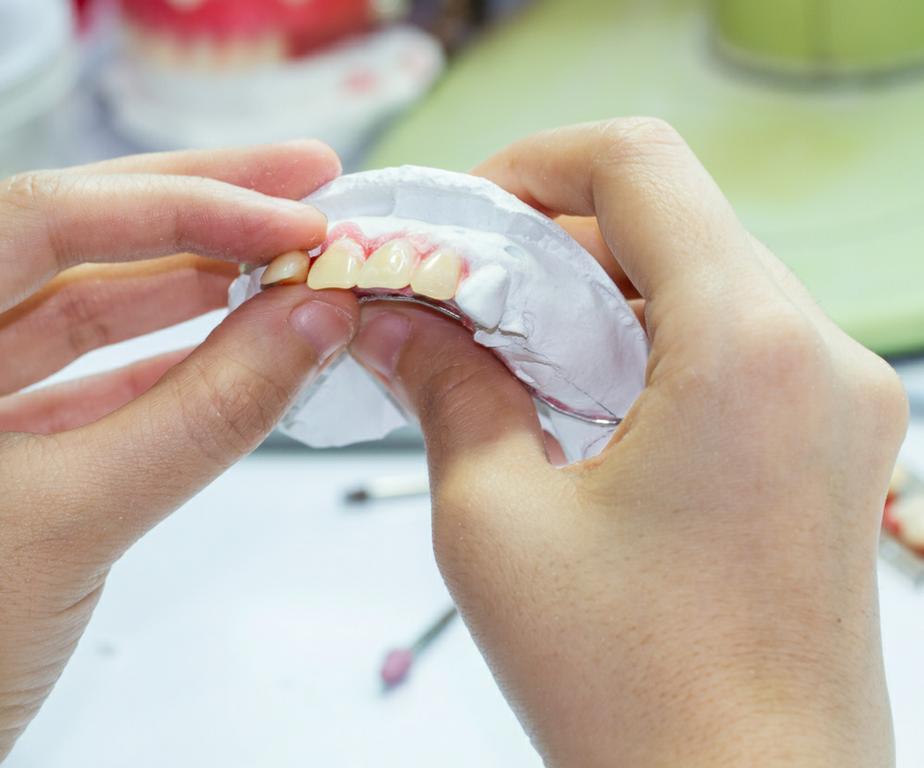 Homemade Dentures